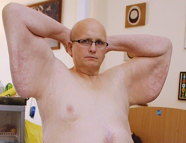 二の腕部分の皮膚のたるみ  この体勢をとると、皮膚の重みで腕がちぎれそうな痛みが走るという  (出典:Daily Mirror)